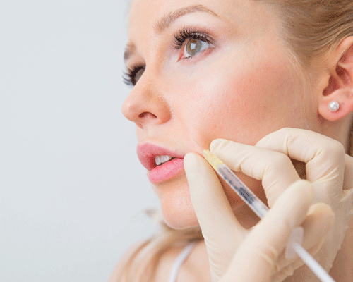 Nasenlippenfurche-mit-hyaluronsäure